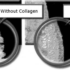 skin with collagen and without